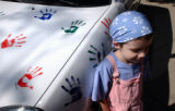 (Denver, Colo., July 15, 2004) Pediatric cancer patient Bailey Morgan, 7, of Mead, Colo., stands...