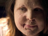 Stephanie LeBlanc, a burn victim, at her home in Warwick, Rhode Island Thursday 20 May 2004. Photo...