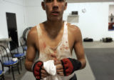 Robert Rodriguez,17, stands in his bloodied t-shirt after sparing with 17-0(KO-11) Welerweight...