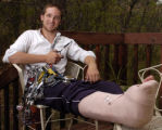 Craig Smith, broke his leg while mountain climbing, poses with some of his equipment, including...