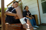(DENVER, COLO., MAY 3, 2004)  Julian Pacheco, 12, of Denver, holds up his legs showing his...