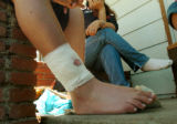 (DENVER, COLO., MAY 3, 2004)  The bandaged leg of a 12-year-old boy shows the exit wound where he...